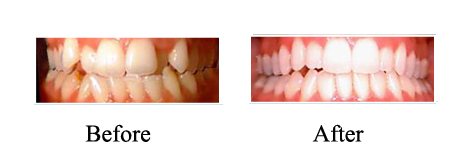 Crowding Corrected With Invisalign